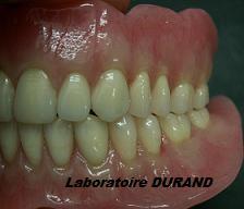 Ecole de prothesiste dentaire bordeaux